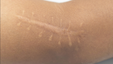 Ameliyat İzlerinin Tedavisi Nasıl Yapılır?